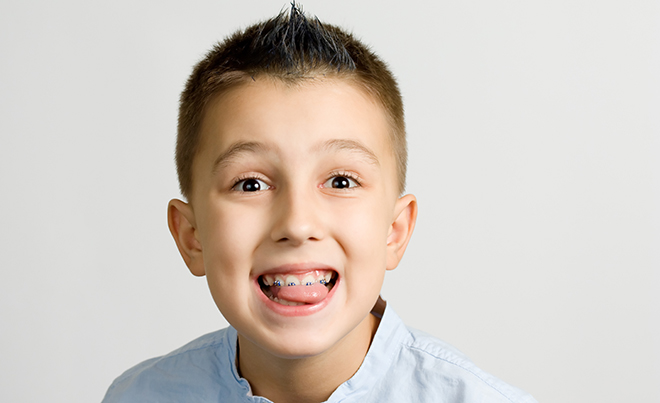ortodoncia-en-ninos