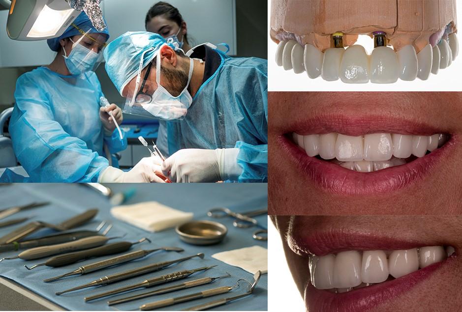 implantes dentales  - Dentalforte